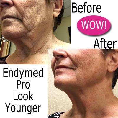 Mirabella Skin Care Skin Tightening Treatment